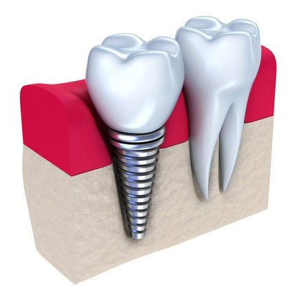 Dental Implants in Roseville, CA