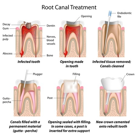 Root Canal Dentistry in California