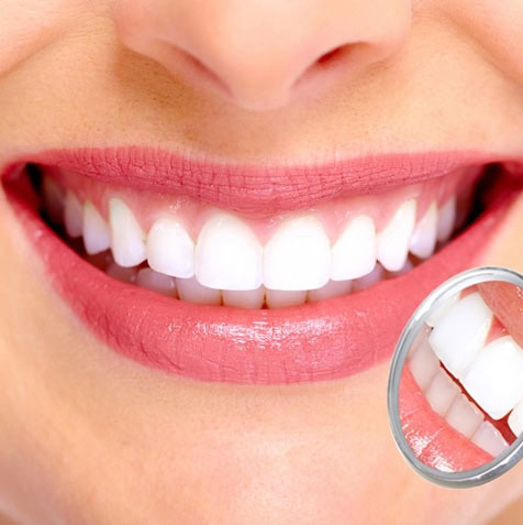 Teeth Whitening in Roseville, CA